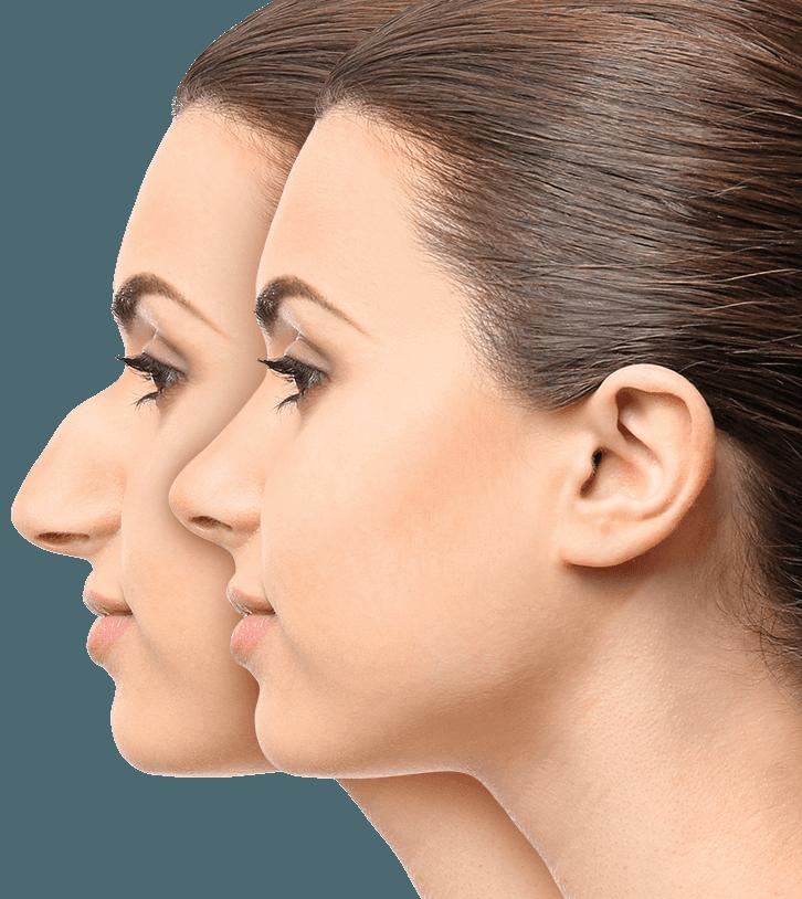 photo-douleur-rhinoplastie-douleur