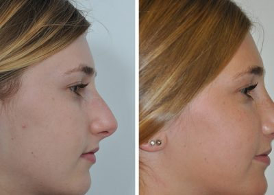 photo-rhinoplastie-avant-apres-1