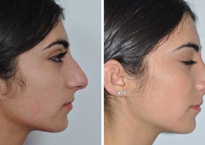 rhinoplastie-avant-apres-10
