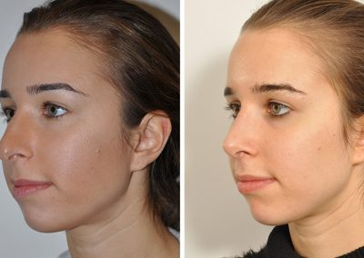 photo-rhinoplastie-avant-apres-6