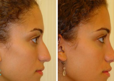 photo-rhinoplastie-avant-apres-7