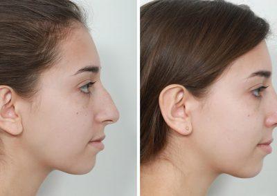 rhinoplastie-avant-apres-2