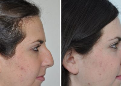 rhinoplastie-avant-apres-20