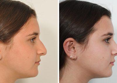 rhinoplastie-avant-apres-4