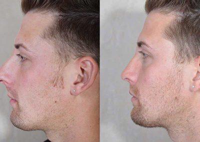 rhinoplastie-avant-apres-40