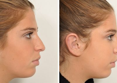 photo-rhinoplastie-avant-apres-4