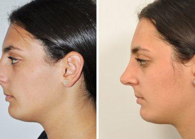 rhinoplastie-avant-apres-7