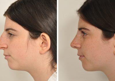 rhinoplastie-avant-apres-8