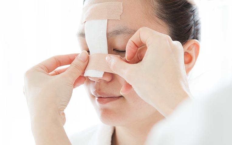 photo-fracture-du-nez-traitement