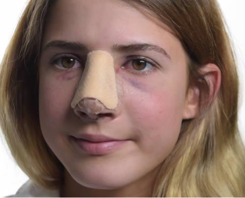 douleur-nez-rhinoplastie