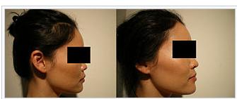 photo-rhinoplastie-medicale-avant-apres-1
