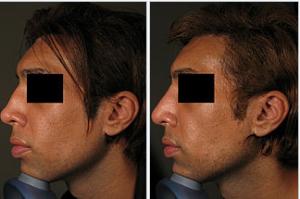 photo-rhinoplastie-medicale-avant-apres-2