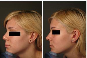photo-rhinoplastie-medicale-avant-apres-3