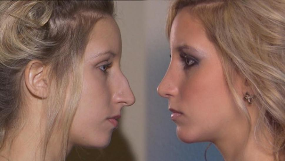 photo-rhinoplastie-adolescent
