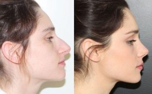 photo-rhinoplastie-avantages-apercu