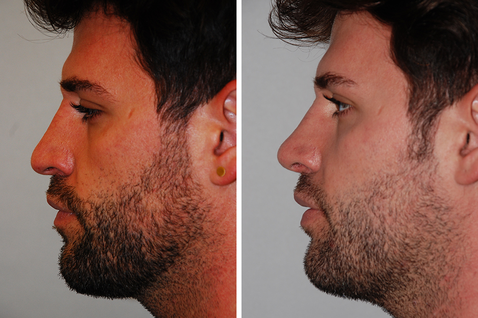 photo-rhinoplastie-homme