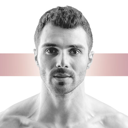 photo-rhinoplastie-homme-masculine
